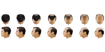 Escala de alopecia