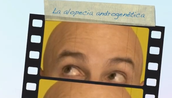 video alopecia